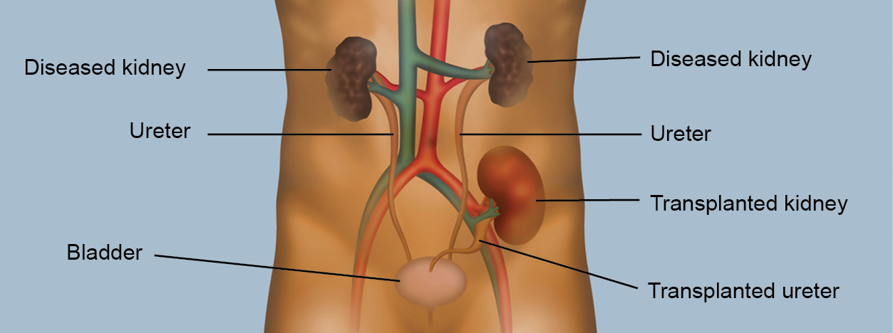 Kidney Transplant Fresenius Kidney Care